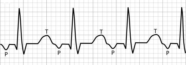 ЭКГ при наджелудочковой тахиаритмии