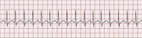 Аритмия сердца показатели тонометр: диагноз, обострение, разновидности болезни, у взрослых