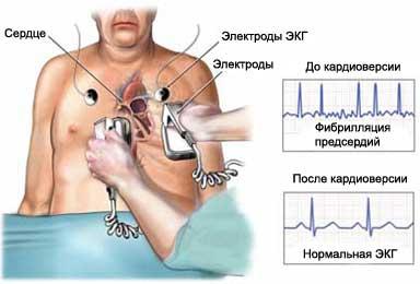 Лекарство при мерцательной аритмии сердца