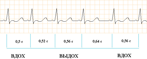 Кардиограмма при дыхательной аритмии