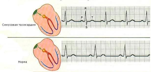 Желудочковая аритмия сердца: симптомы, причины