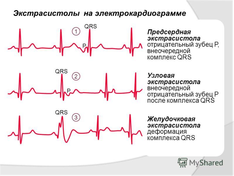 Предсердная экстрасистолия на экг - Всё о сердце