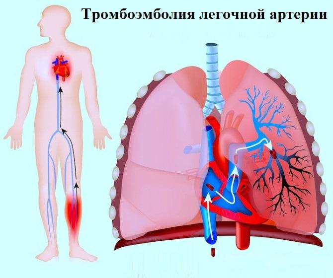 Аритмия сердца опасна ли для жизни