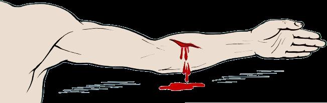 Ацетилсалициловая кислота - инструкция [показания, способ применения]