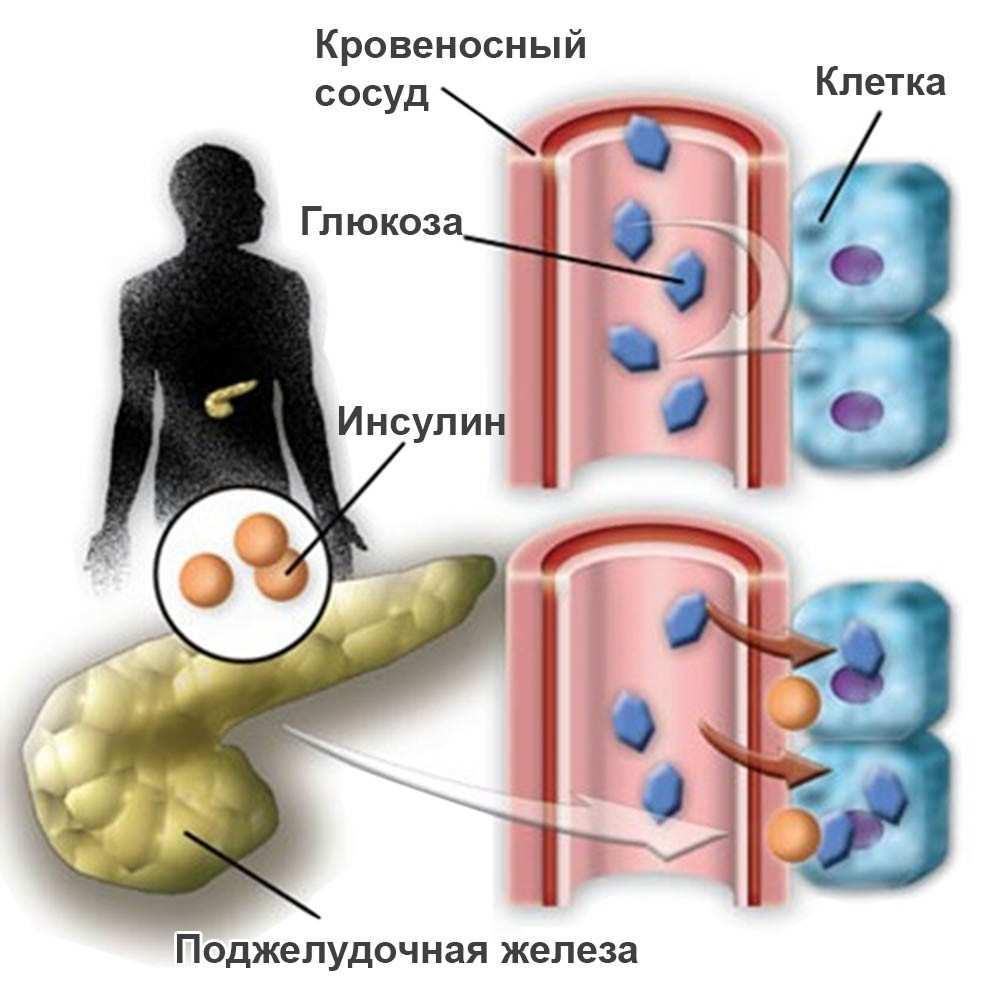 Глюкованс или глюкофаж что лучше